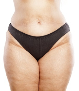 Lipedema Surgery Center