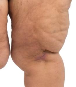 Lipedema lumpy skin