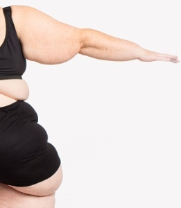 Lipedema Surgery Center - Lipedema Liposuction Center