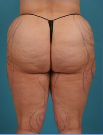 Before & After Pictures | Lipedema Surgery Center