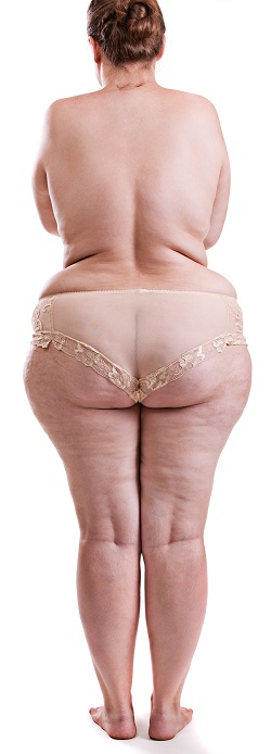 Water-Jet Assisted Liposuction (WAL) | Lipedema Surgery Center