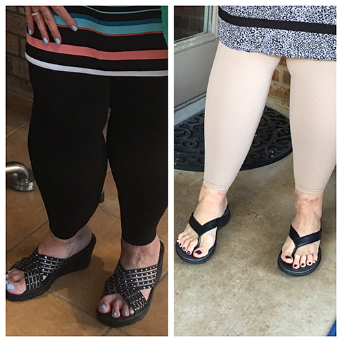 before and after photos of legs | lipedema liposuction