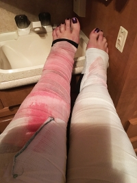 recovery | photo showing legs bandages after Lipedema surgery