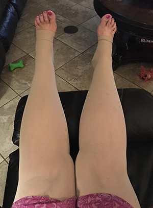 photo of beige compression garments after recovery