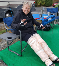 Benefits of Treatment | photo of Denise with bandages on legs