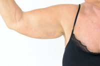 arm liposuction | photo of woman holding up her overweight arm