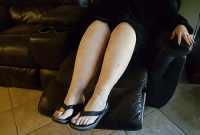 after photo of legs that have had Lipedema Surgery