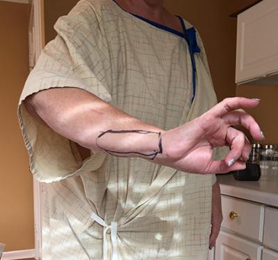 seroma removal | photo of seroma on wrist