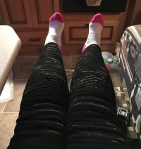 the genetic factor of Lipedema | photo of Denise's legs