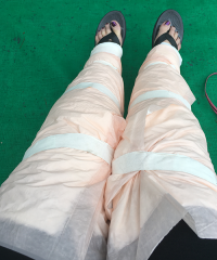lipedema surgery recovery | photo of wrapped legs after surgery