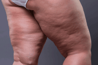 Cellulite or lipedema