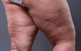 Cellulite or lipedema