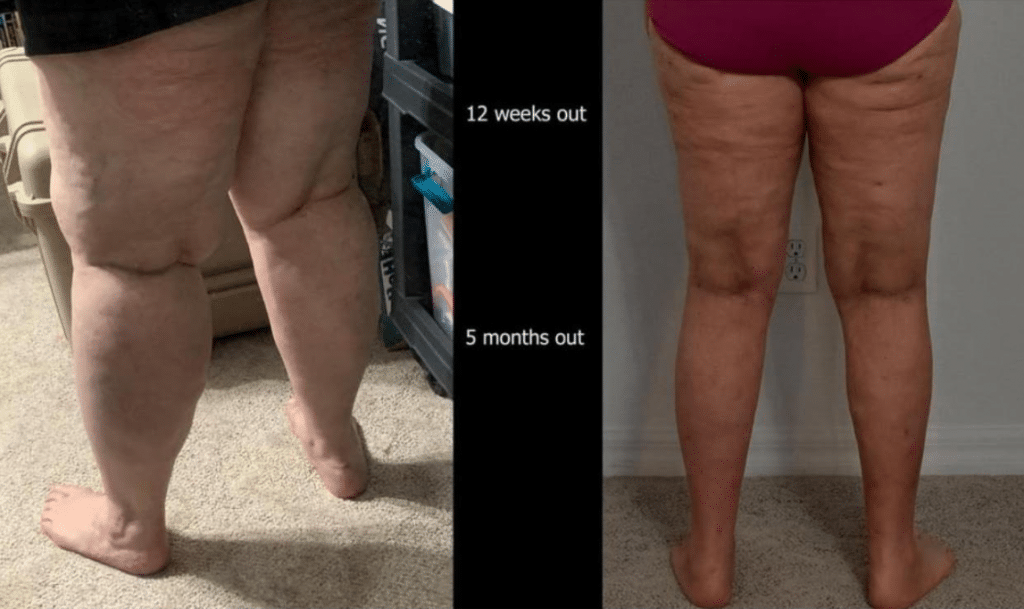 Lipedema Surgery Center before and after