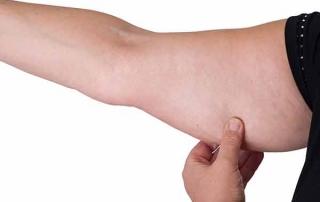 lipedema arm lift